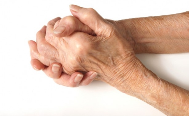 Older person hand with Arthritis